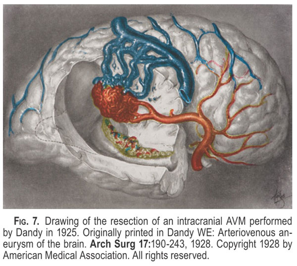 Drawing of trigonal AVM by Dandy reflecting his depth of lesion understanding and the surgical skill needed to approach such a lesion